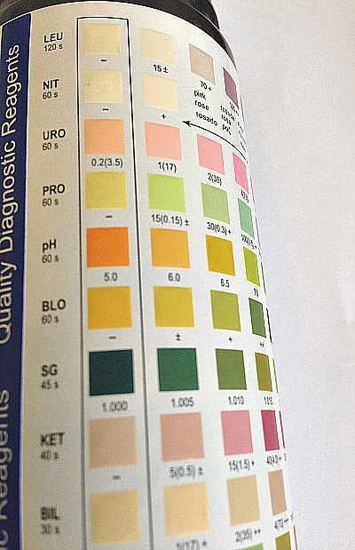 Urinalysis is one of the most commonly done urine test in the world.