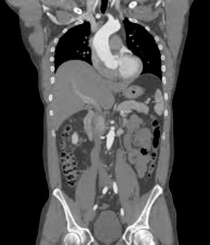 CT scan showing organs and structures in the abdomen.