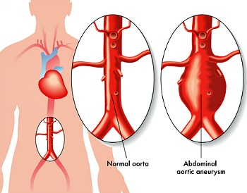 Abdominal Aneurysm is a localized ballooning of a segment of the aorta. It could be fatal.