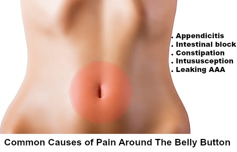 Causes of Pain Around Belly Button