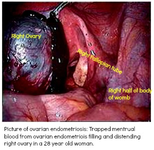 Endometriosis involving an ovarian cyst