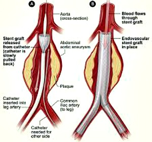 Endovascular Abdominal Aortic Aneurysm Repair