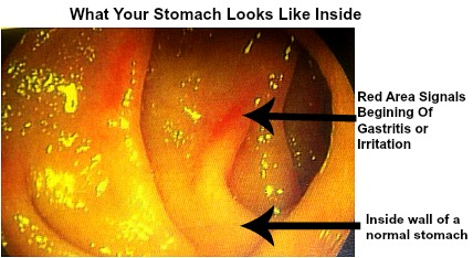 Alcoholic Gastritis: Note the two red spots due to irritation of the wall of the stomach in this patient.