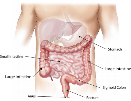 Obstruction in your small bowel could lead to pains around your belly button