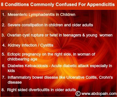 Differential diagnosis of appendicitis.