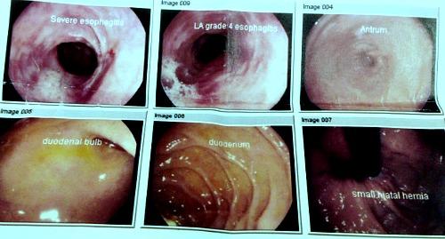 Oesophagogastroduodenoscopy pictures