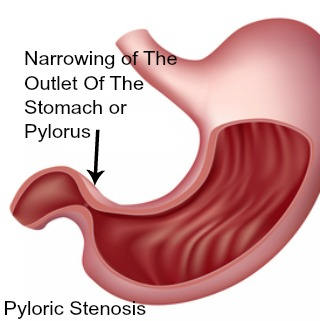 Pyloric stenosis - a cause of abdominal pain in babies 0 to 3 months old.