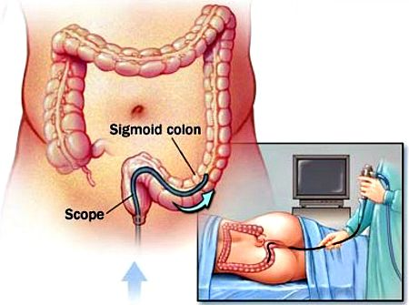 Sigmoidoscopy procedure in progress.